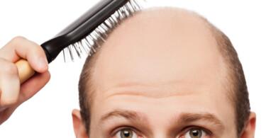Haarausfall bei Männern - helfen Haarwuchsmittel wirklich?