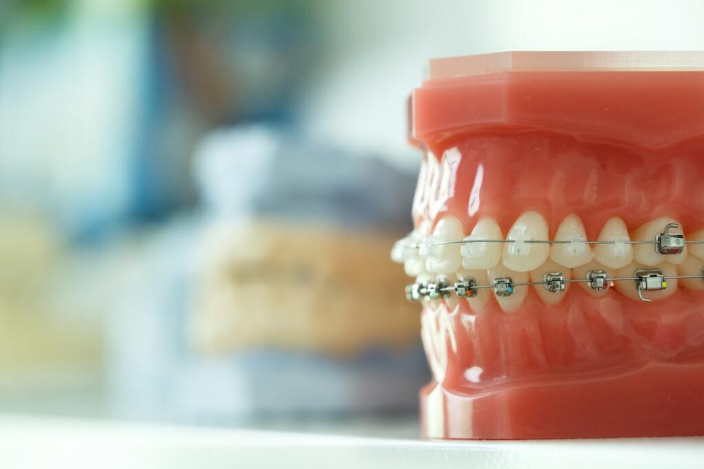 Zahnspange bei Kindern