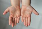 Hand-Fuß-Mund Krankheit - Bläschen auf den Händen
